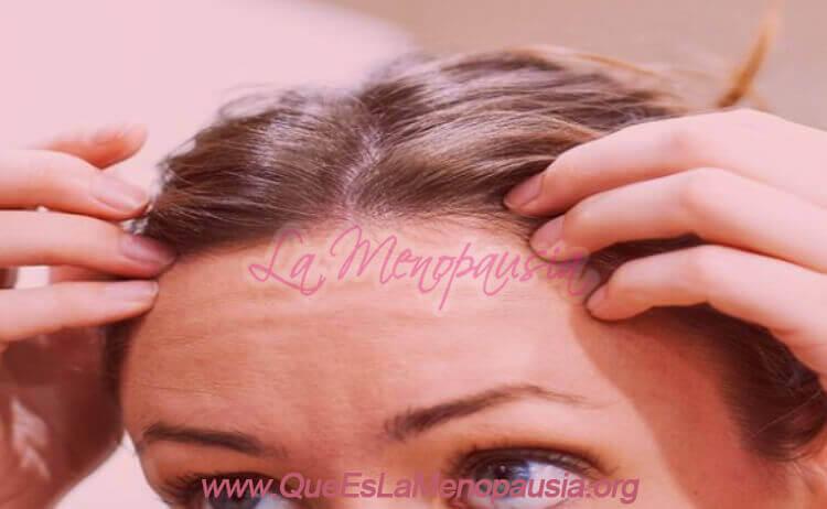 Alopecia androgénica femenina Conclusión