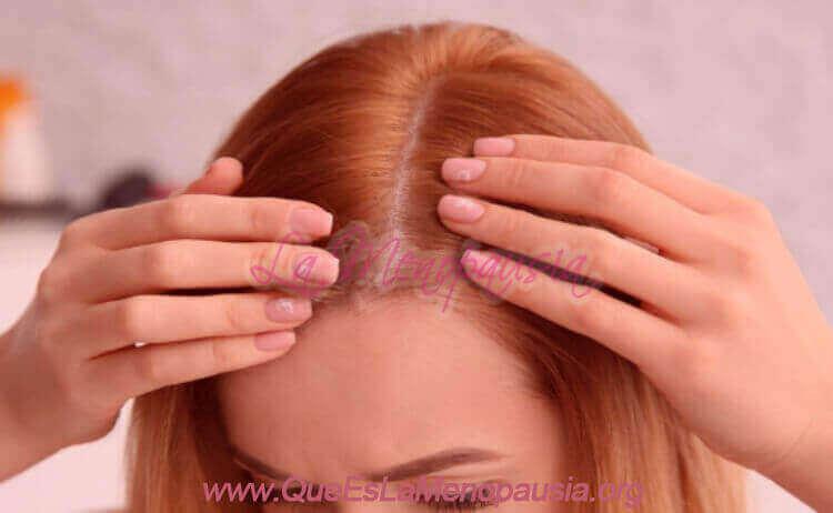 Minoxidil para la alopecia en la mujer