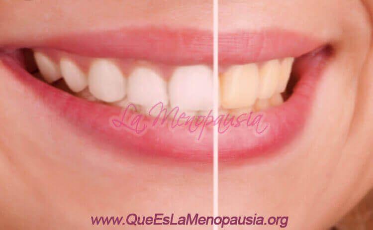 Efectos de la menopausia en encías y dientes