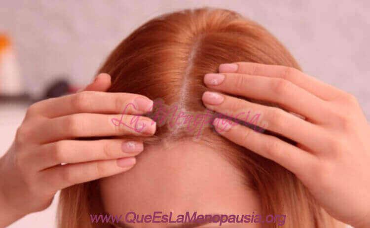 Mujer menopáusica con perdida de cabello