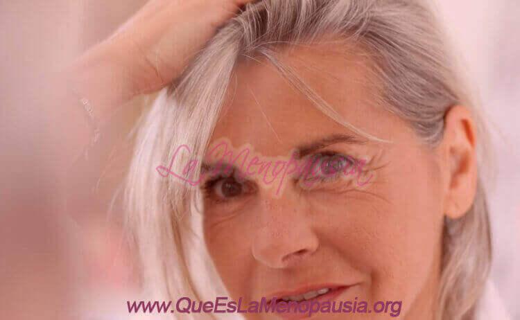 Mujer con alopecia en la menopausia - Injerto Capilar