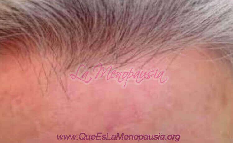 Alopecia frontal fibrosante femenina Fotos 3