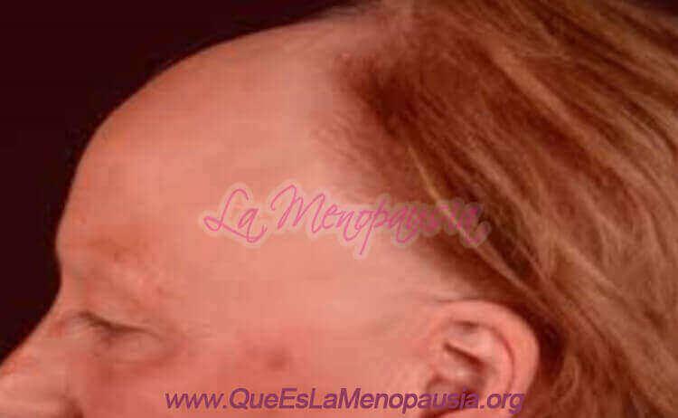 Alopecia femenina frontal Fotos 6