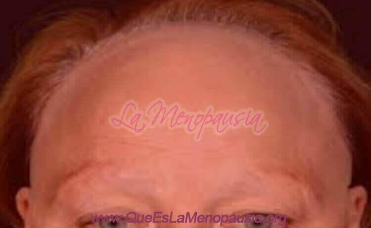 Resumiendo Alopecia femenina frontal fibrosante