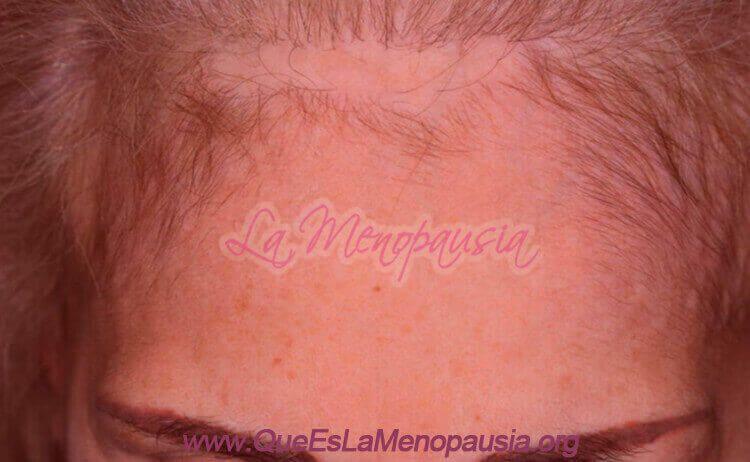 Alopecia frontal fibrosante: Síntomas