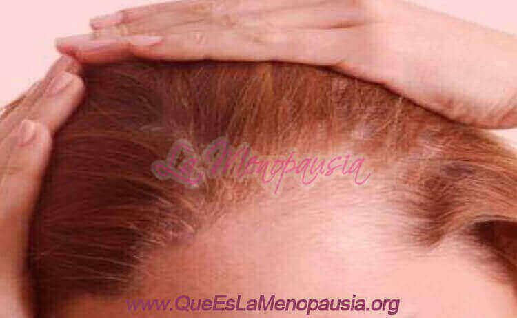 Tratamientos de la alopecia frontal fibrosante