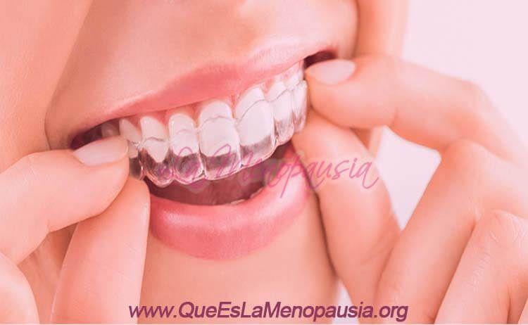Ortodoncia Invisalign: ¿Qué es?