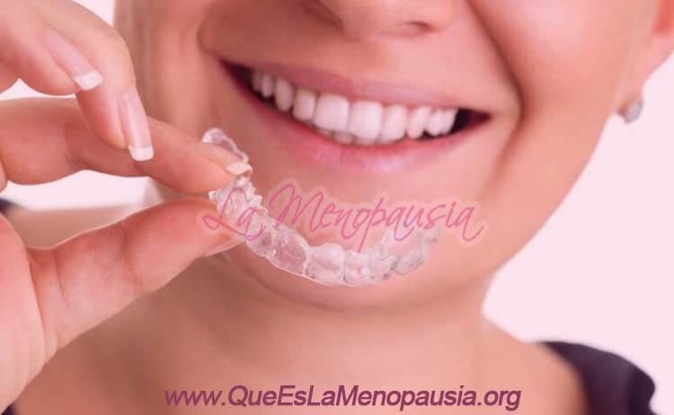 Tratamiento de ortodoncia en adultos