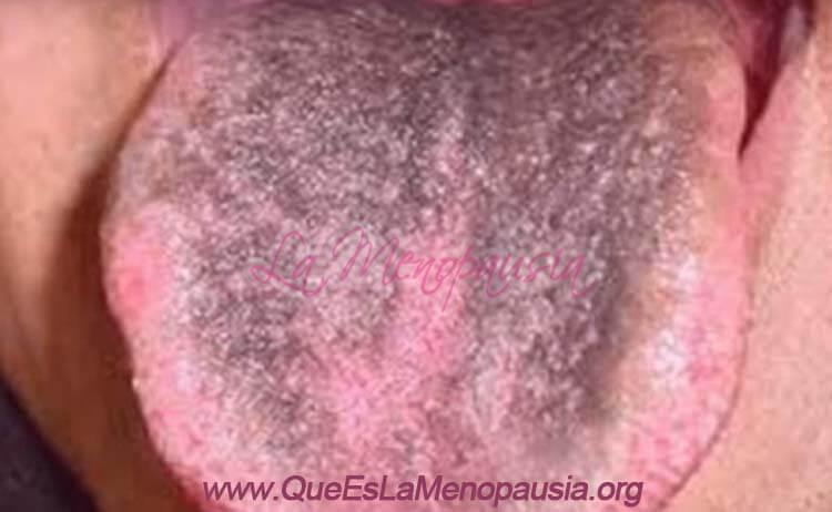 Síntomas de las manchas negras en la lengua