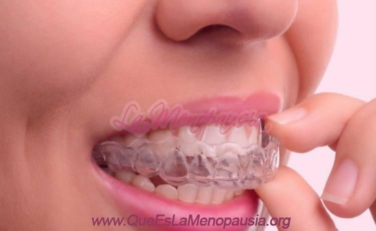 Alternativas de ortodoncia para adultos mayores